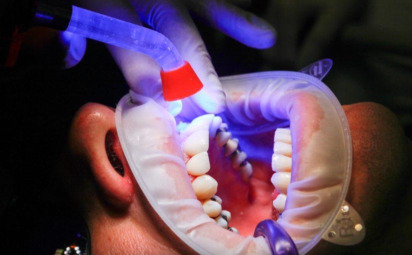 Zła sposób żywienia się to większe braki w zębach a także ich zgubę